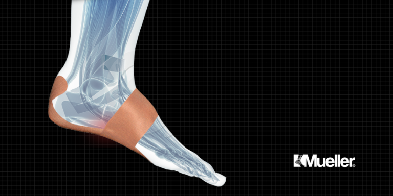 visual of PFTape Plantar Fasciitis Pain Relief System application