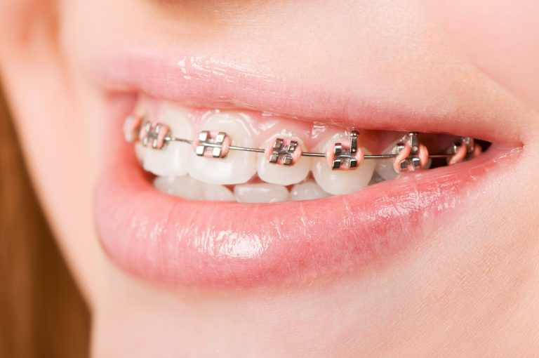 close up of young girl's braces with pink bands